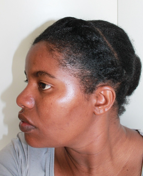 A short term protective style on natural hair