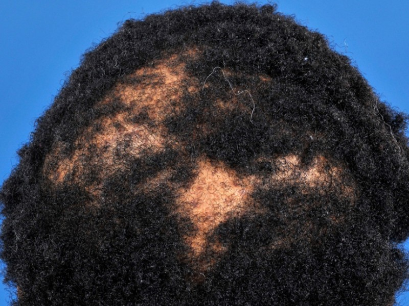 Homemade Products For Black Natural Hair