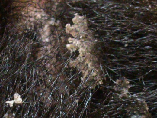 flacking scalp due to seborrhoeic dermatitis