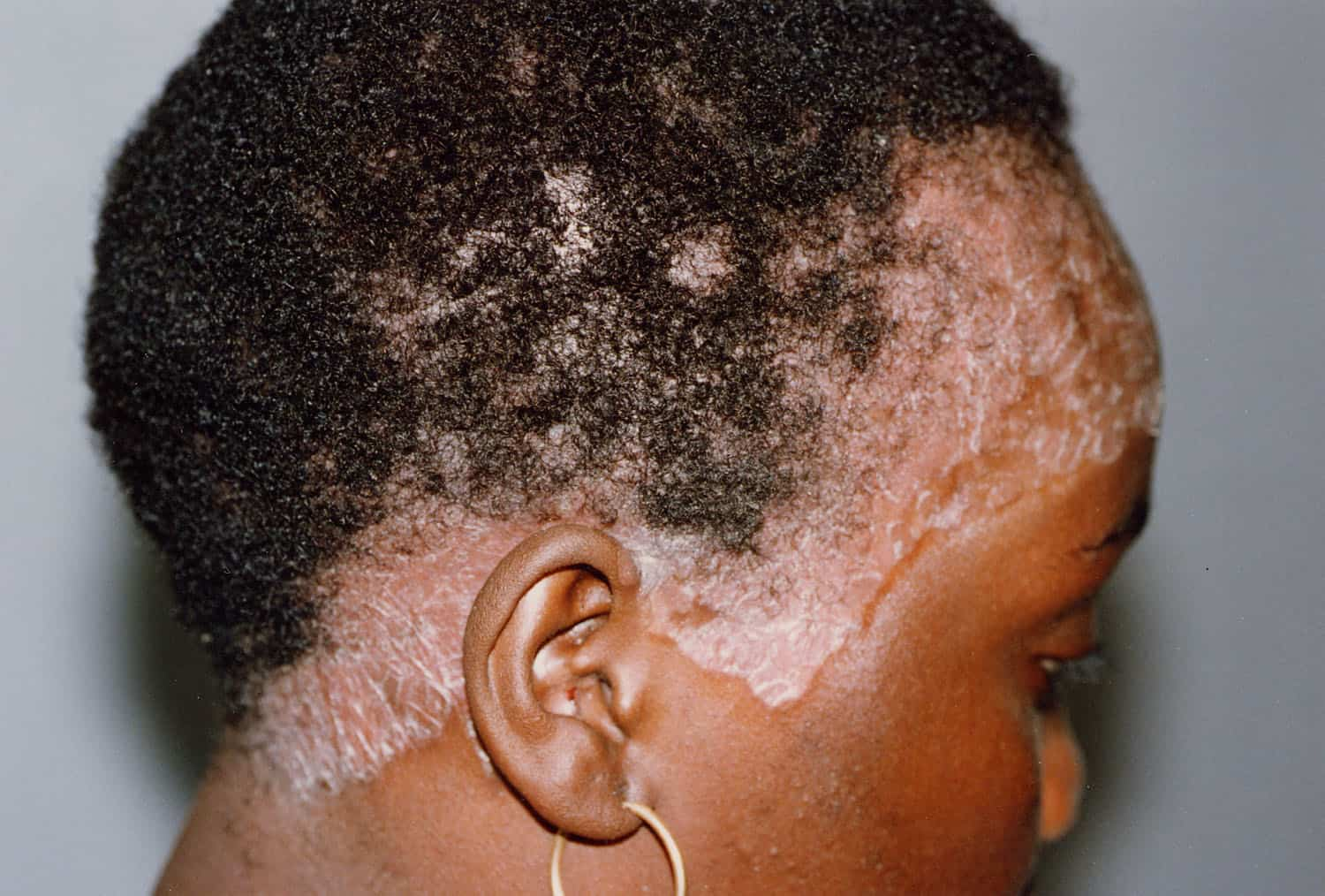 uv comb for scalp psoriasis