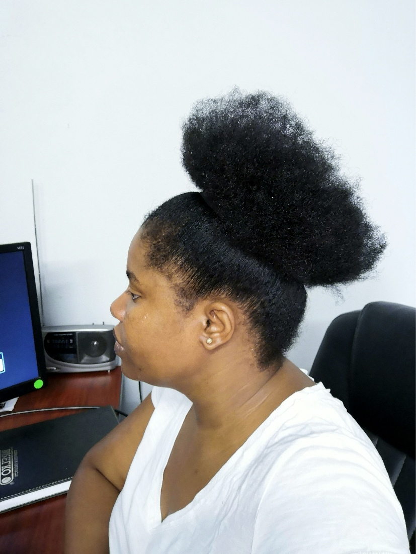 Receding Hairline Natural Sisters South African Hair Blog